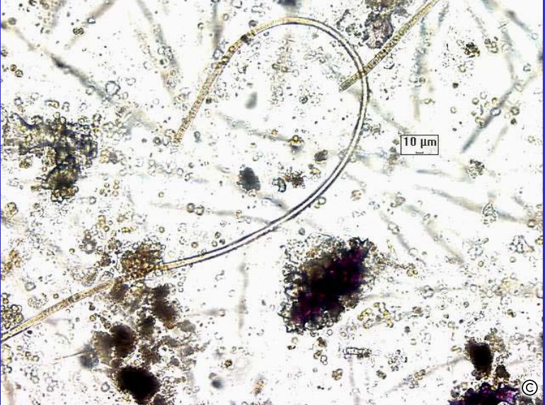 This is a microscopic view of the coral fungal disease called aspergillosis. This particular picture was taken from a sample in the Florida Keys. It is thought to have entered the ocean from soil run off.